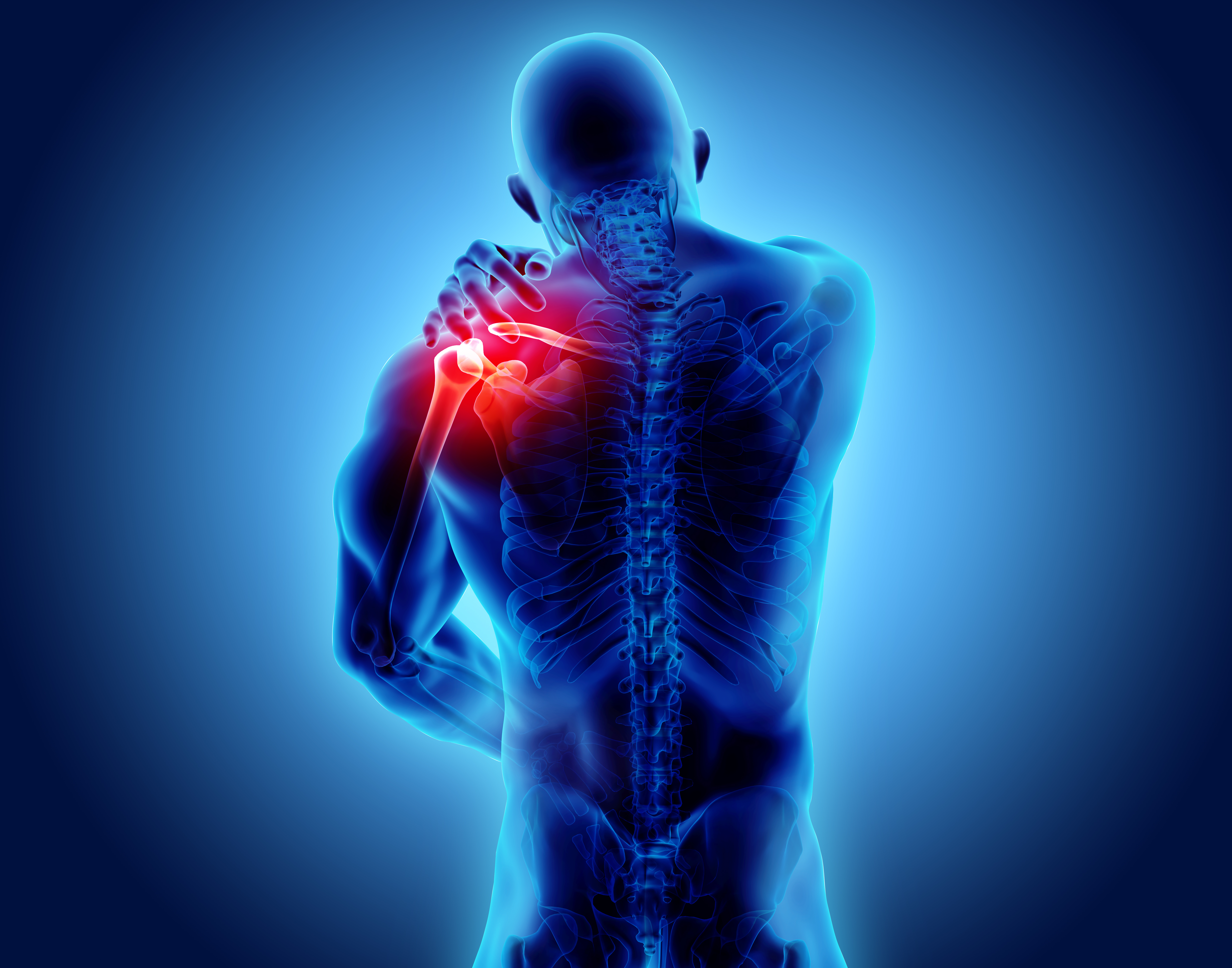Shoulder Tendon Injury Dr Justin Sherfey